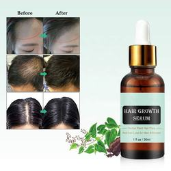 Private Label Oem Perfect Serum Natural Hair Growth Essential Oil Women  Hair Care Growth Serum