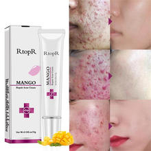 RtopR Mango Repair Acne Cream Anti Spots Acne Treatment Scar Blackhead Cream Shrink Pores Whitening Moisturizing Face Skin Care