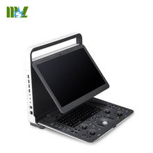 New design Sonoscape E3 portable color doppler ultrasound machine system Notebook computer model for widely used