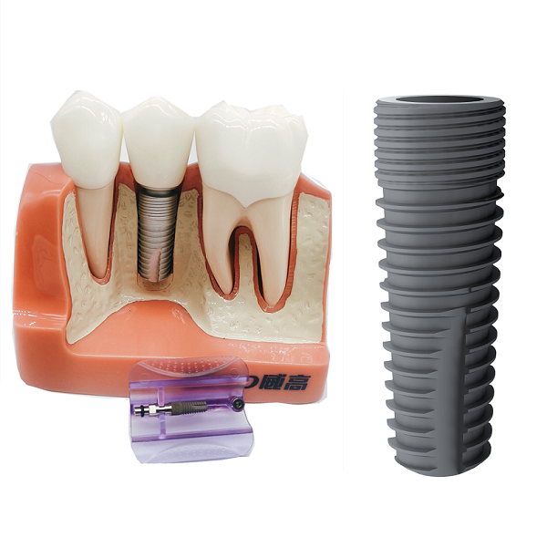 WEGO Dental Implant Implantes Dentale Implant Dentaire Tooth Fixture